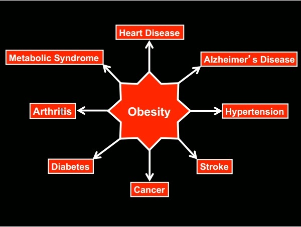http://coconutoil.com/wp-content/uploads/sites/6/2014/04/obesity-modern-diseases.jpg