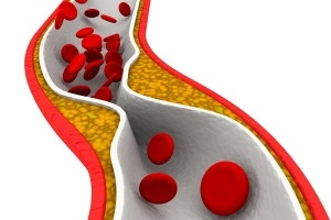 cholesterol-artery-300x200