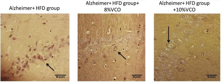 VCO Alzheimer study images